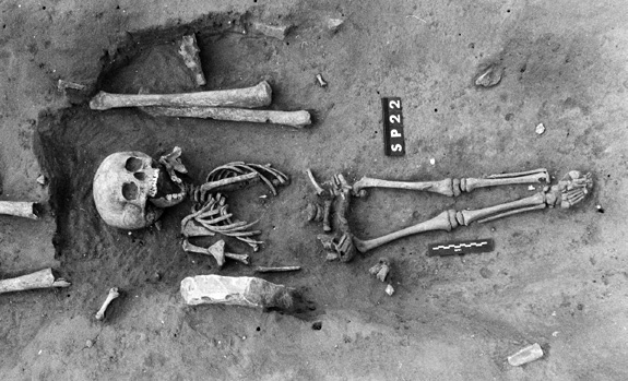 The skeleton of the earliest known case of Down syndrome is offering clues about how ancient communities looked at those with the chromosomal disorder, researchers say. (International Journal of Paleopathology)